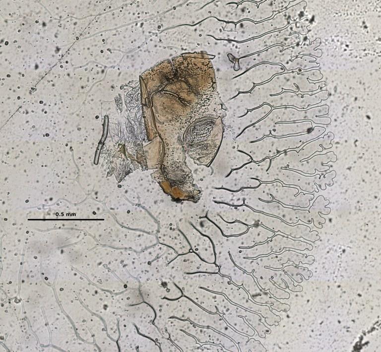 Ephemerythus (Tricomerella) straeleni s1 head mouthparts 1 10x.jpg