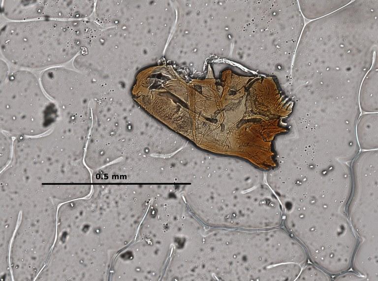 Ephemerythus (Tricomerella) straeleni s1 head mouthparts 2 20x.jpg