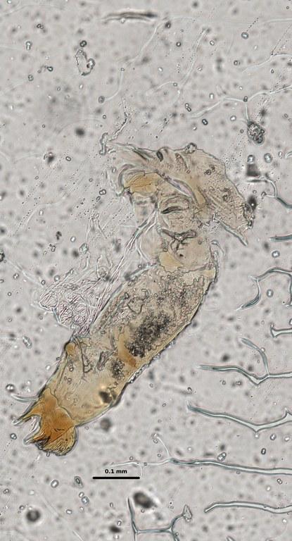 Ephemerythus (Tricomerella) straeleni s1 head mouthparts 6 20x.jpg