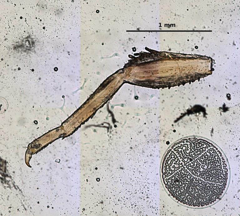 Ephemerythus (Tricomerella) straeleni s4 leg 2 5x.jpg