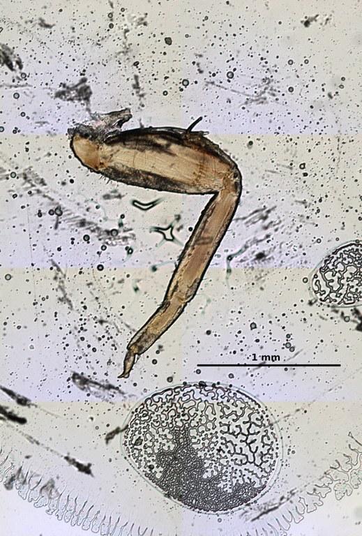 Ephemerythus (Tricomerella) straeleni s4 leg 6 5x.jpg