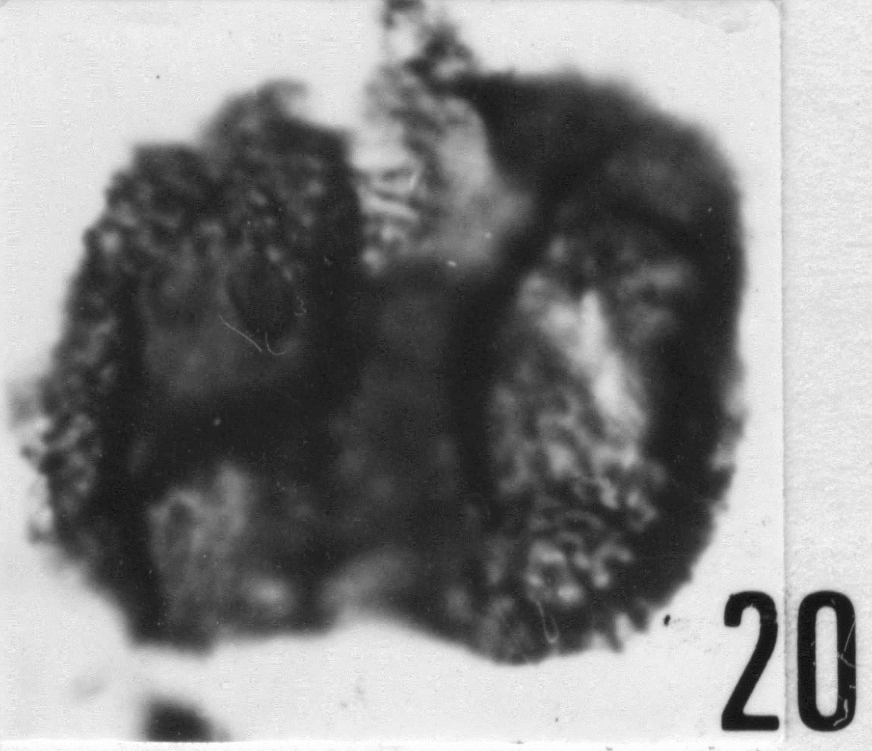 Fig. 20 - Acanthodiacrodium angustum (Downie, C., 1958) Combaz, A., 1967. CHE-25. I. R. Sc. N. B. N° b503.