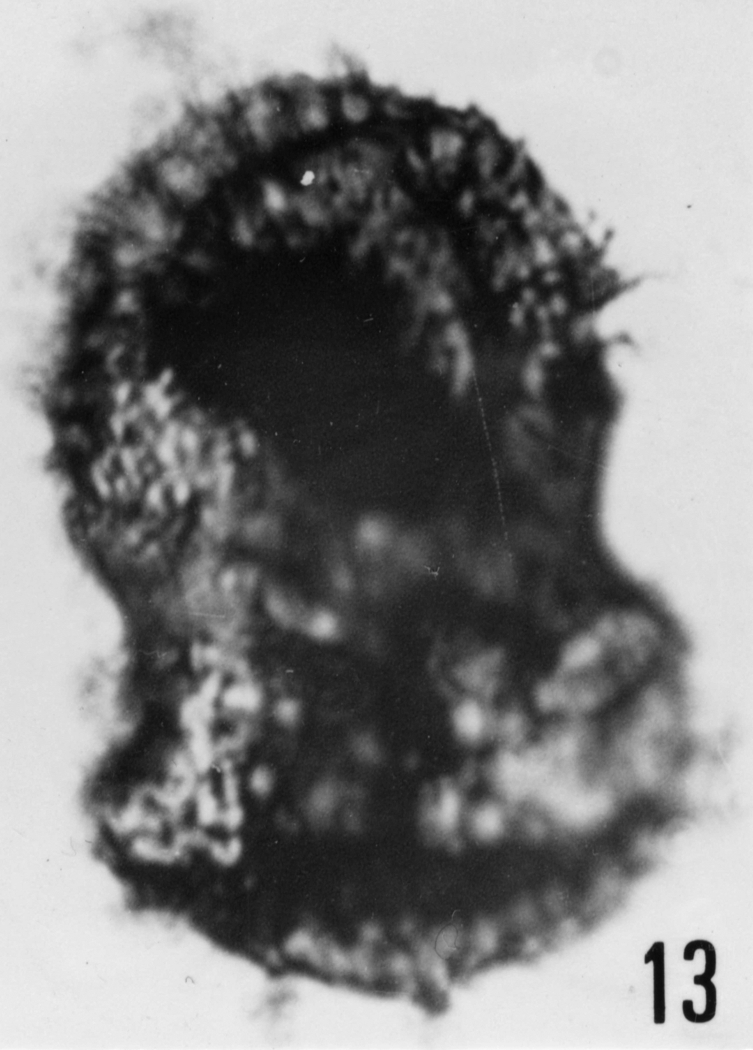 Fig. 13 - Acanthodiacrodium papillare Timofeev, B. V., 1959. CHE-25. I. R. Sc. N. B. No b505.