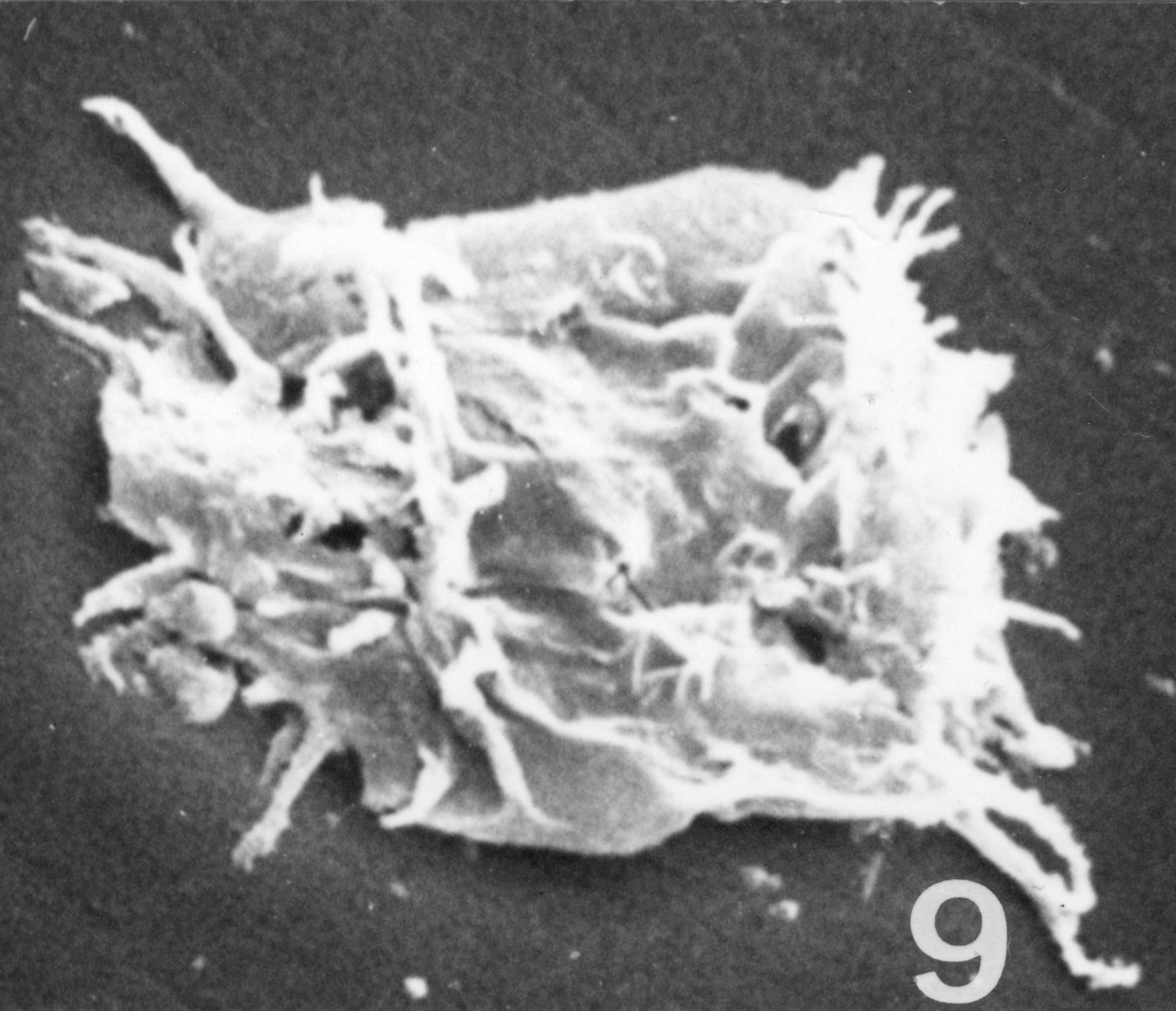 Fig. 9 - Acanthodiacrodium ubui Martin, F., 1969. CHE-31. I. R. Se. N. B. No b531.