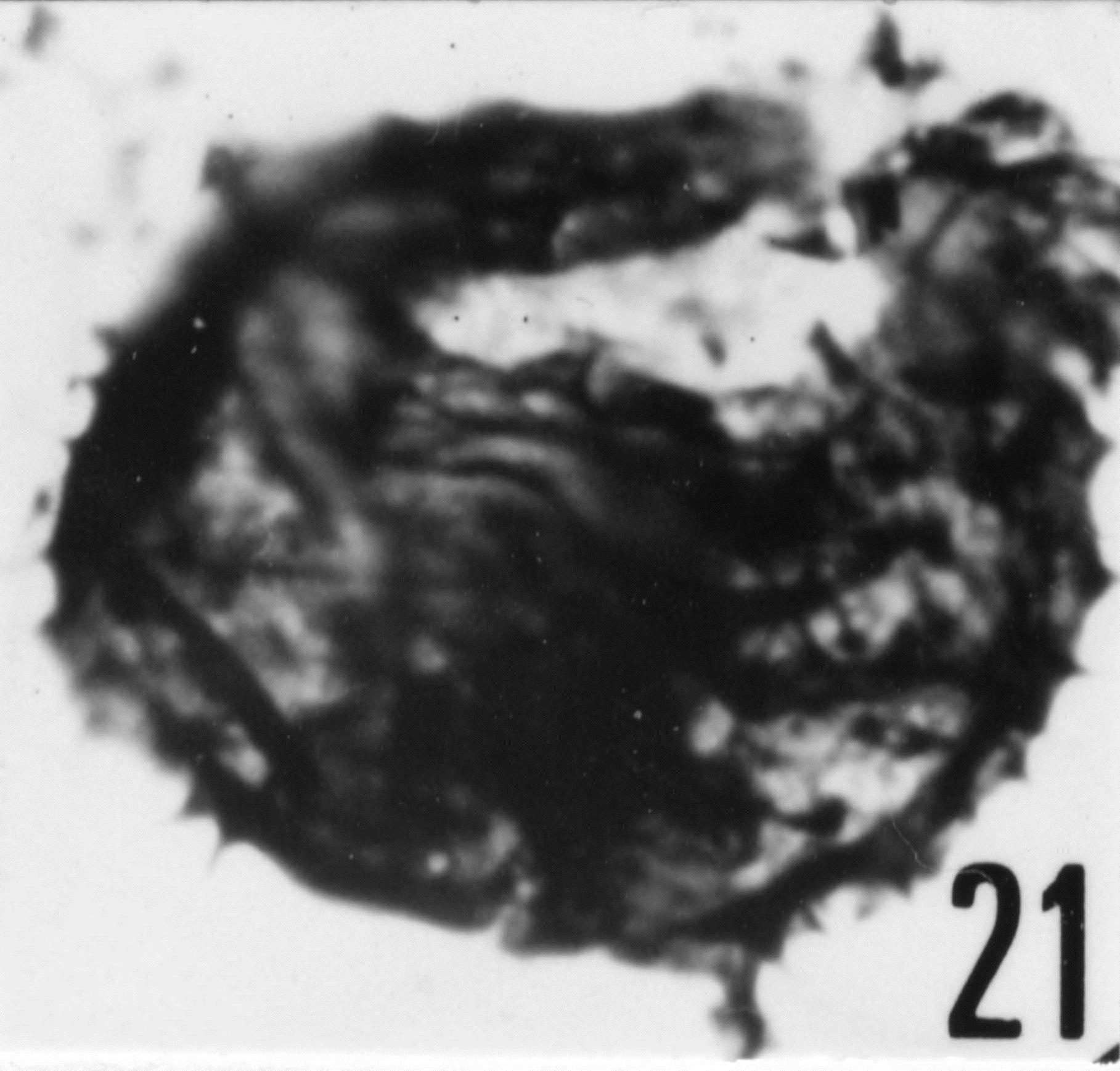 Fig. 21 - Acanthodiacrodium ubui Martin, F., 1969. Ouverture longitudinale. CHE-31. I. R. Se. N. B. N° b510.