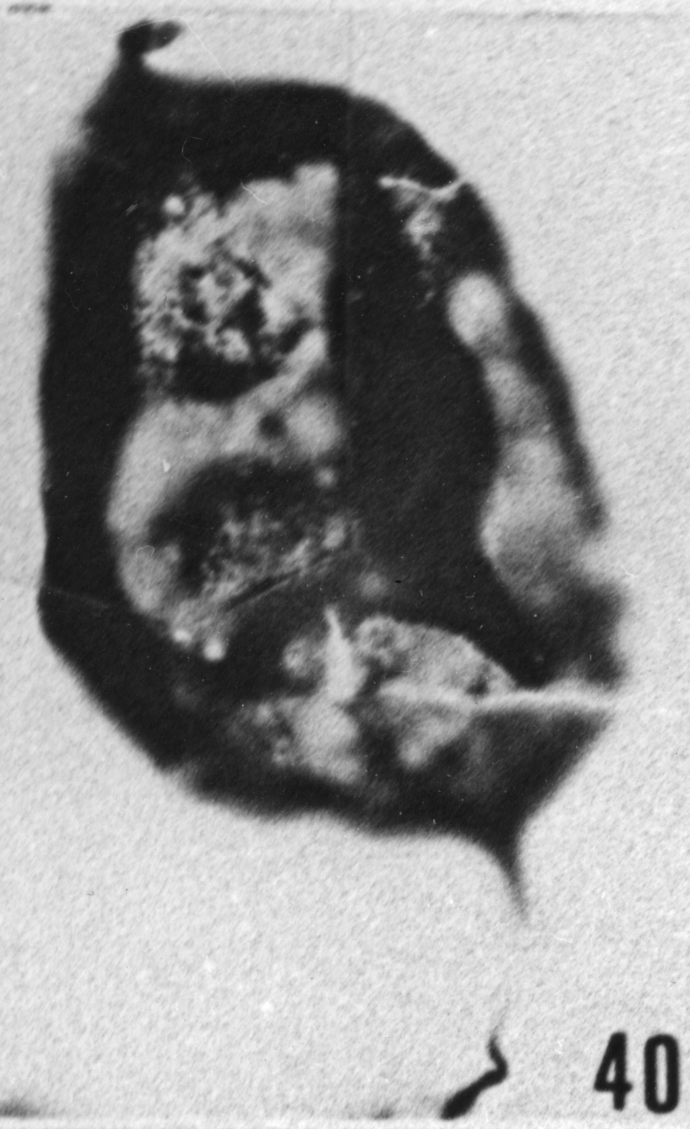Fig. 40 - Baltisphaeridium macroceros (Deunff). —175,50 m. b419.