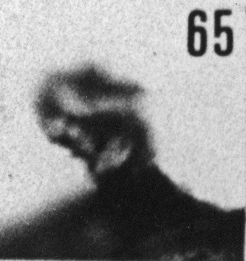 Fig. 65 - Baltisphaeridium aff. macroceros (Deunff) —172,50 m. b 410.