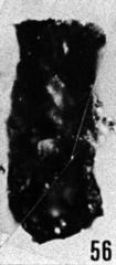 Fig. 56 - Conochitina tenuissima nov. sp.; holotype. —175,50 m. b421.