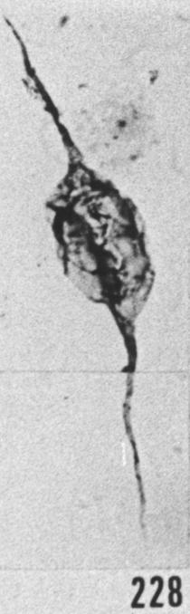 Fig. 228 - Leiofusa tumida Downie. —180,00 m. b 339.