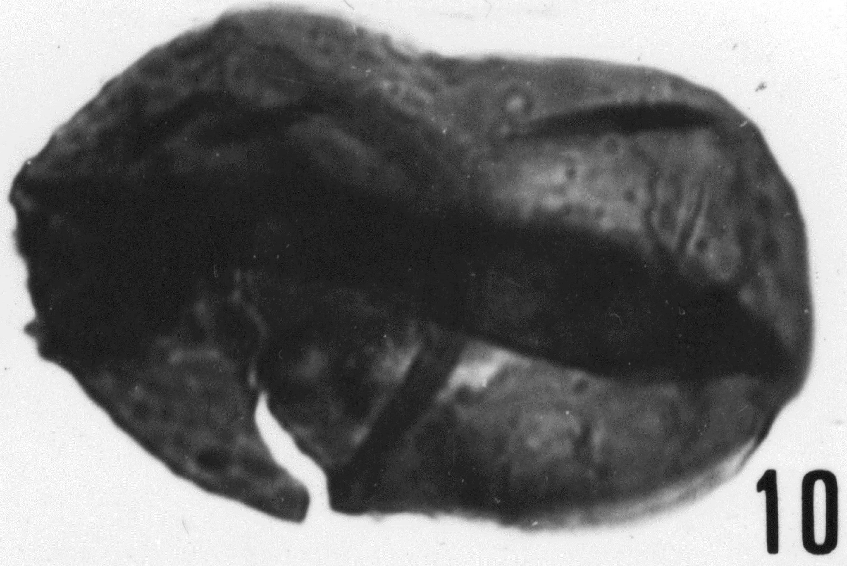 Fig. 10 - Lophodiacrodium filiforme (Timofeev, B., 1959) Deflandre G. et Deflandre-Rigaud, M., 1962. La Roquemaillère : ROQ-4. b 440.