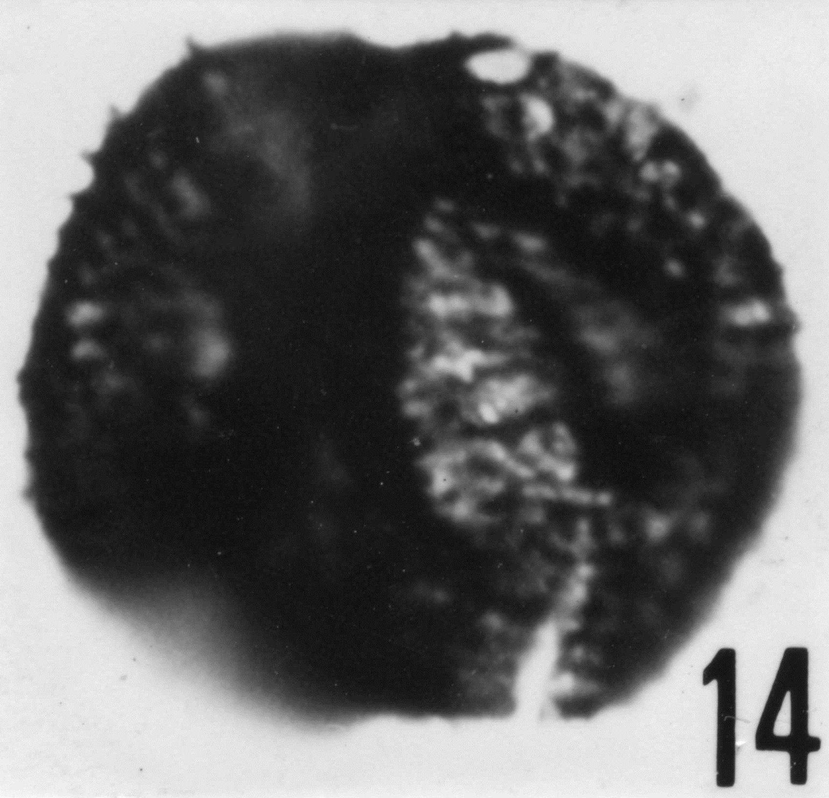 Fig. 18 - Micrhystridium pellitum n. sp. CHE-32. Paratype I. R. Sc. N. B. N° b514.