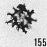 Fig. 155 - Multiplicisphaeridium lobeznum (Cramer); ouverture polygonale. -183,00 m. b 383.