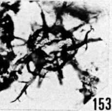 Fig. 153 - Multiplicisphaeridium rusticum nov. sp. —154,50 m. b 359.