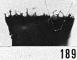 Fig. 189 - Ancyrochitina aff. bulmani (Jansonius); détail de la collerette. -178,50 m. b 380.