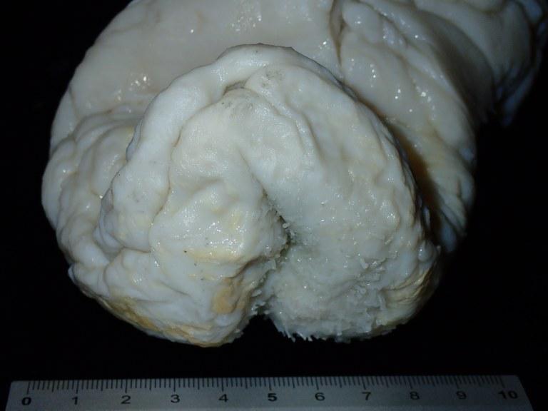 BE-RBINS-INV HOLOTYPE HOL.969 Stichopus ocellatus Anal region (facial).jpg