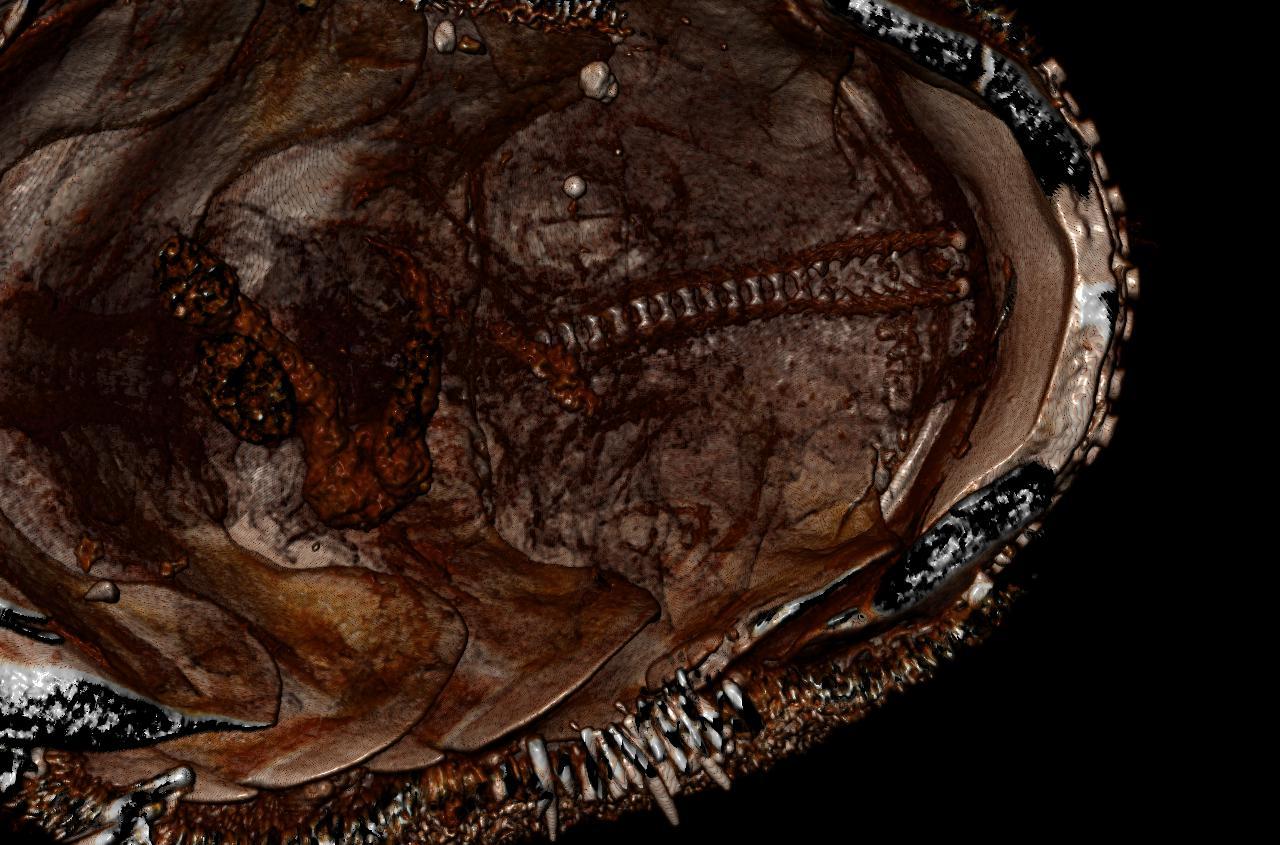 BE-RBINS-INV HOLOTYPE MT.2960/1 Acanthochiton minutus MICROCT XRE RADULA.jpg